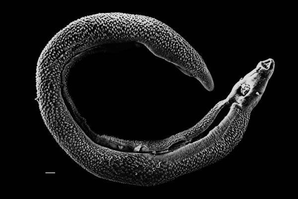 Новости с переднего края паразитологии – в нашем интервью