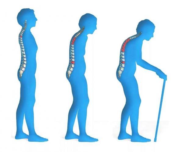 20 октября – всемирный день остеопороза, который еще называют «тихой эпидемией XXI века»