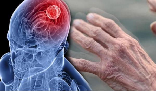 Ученые сто лет ищут причины неизлечимой болезни
