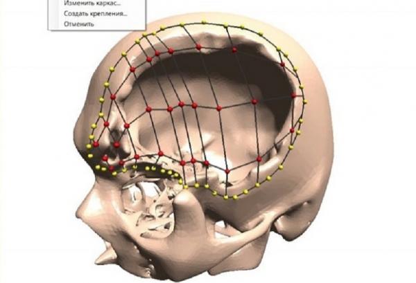 """Студент Новосибирского государственного технического университета (НГТУ) Александр Гриф придумал первую в России технологию, создающую индивидуальные импланты для людей с черепно-мозговыми травмами. В будущем разработка позволит печатать индивидуальный имплант на 3D-принтере, что сократит издержки при операциях за счет экономии титана, используемого при операциях, сообщила в четверг сообщила пресс-служба вуза. """"Компьютерная программа позволяет отказаться от стандартных пластин, с ее помощью можно создавать"""