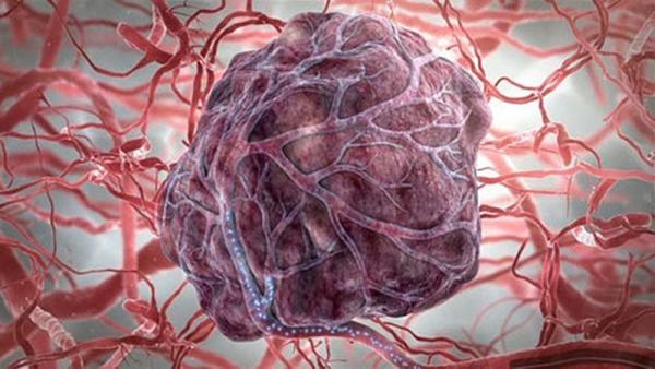 Чтобы понять истинную причину возникновения онкологических заболеваний, ученым, возможно, придется изменить свои подходы к осмыслению данного явления